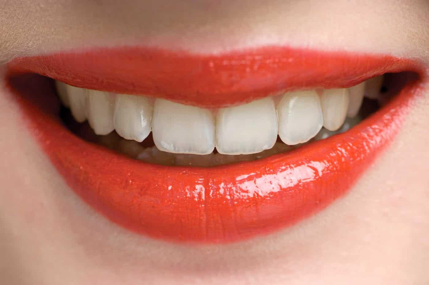Dental Crowns Implant Filling