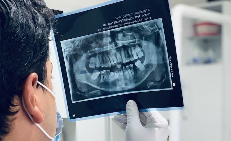 Visit Dentist More Often for Cavity Exam